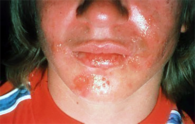 cold-sore-causes-outbreak.jpg