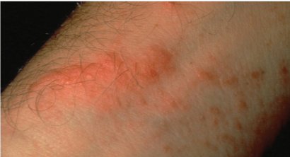 Allergic contact dermatitis to nickel sulfate